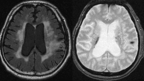 認知症改善に映像を